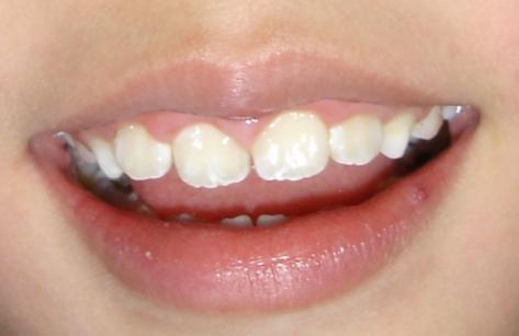 矫正好后的右门牙.jpg