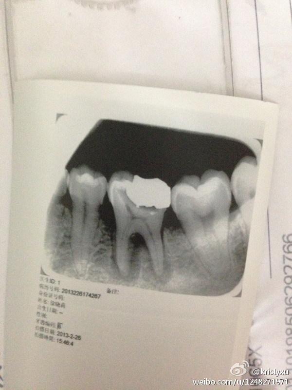 牙齿.jpg
